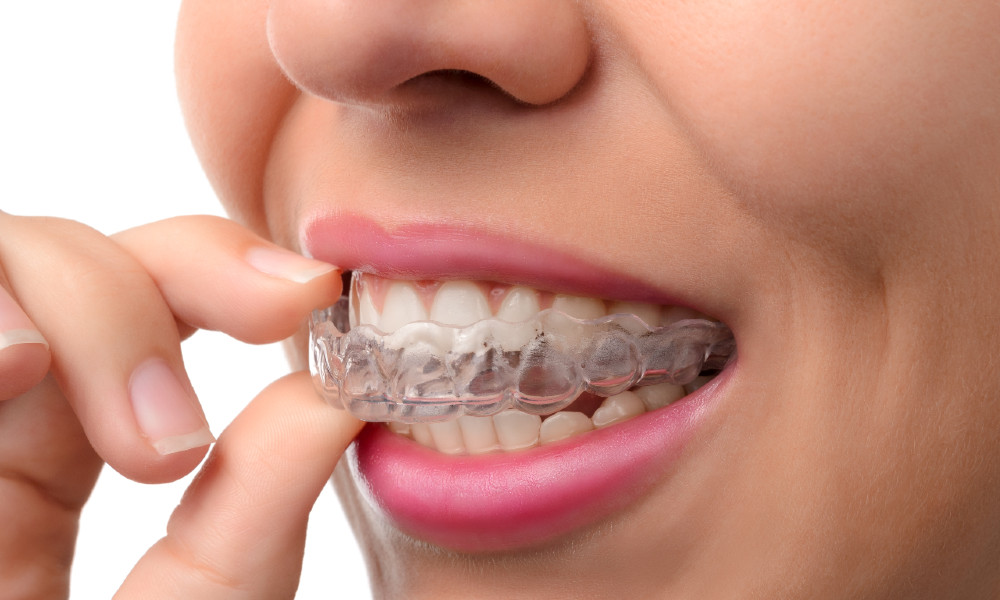 Your Top Invisalign Clear Aligner Questions Answered